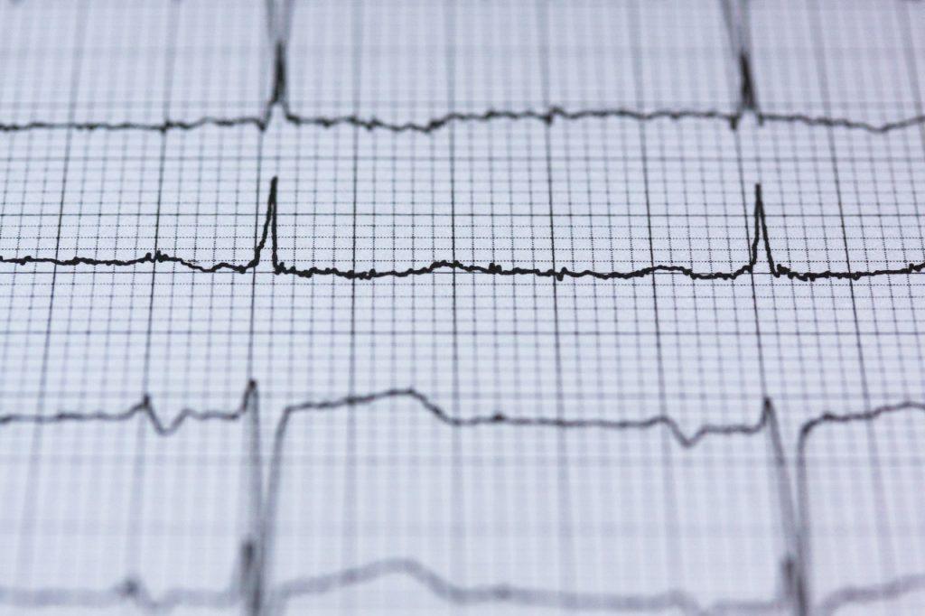 Heartbeats