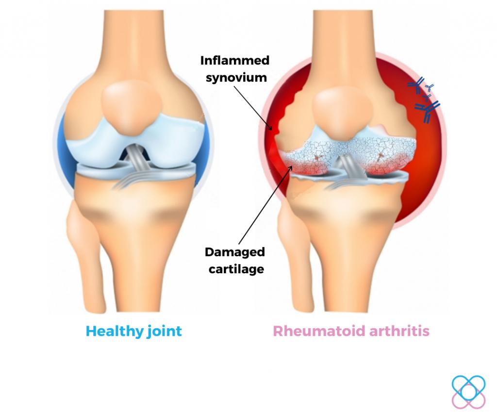 Rheumatoid Arthritis- Autoimmune disorder