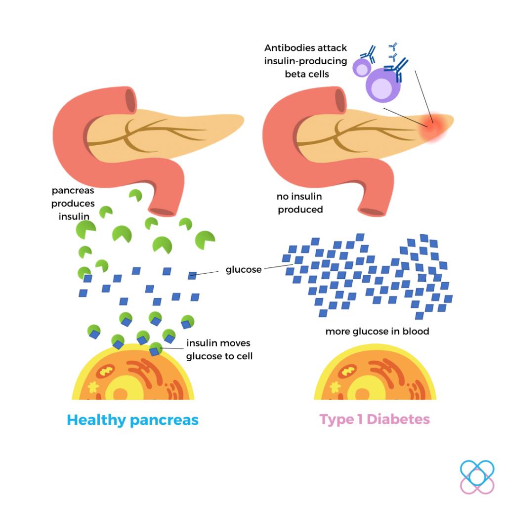 Type 1diabetes- Autoimmune Disorder